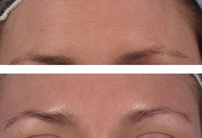 Wrinkle Repair