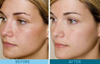 GLYCOLIC ACID BEFORE & AFTER