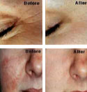 Before & After Acne - Wrinkle