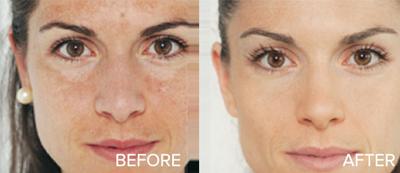 Kết quả hình ảnh cho niacinamide before and after